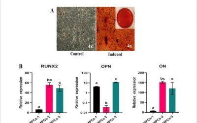 Characterization of human articular cartilage derived mesenchymal progenitor cells from osteoarthritis patients